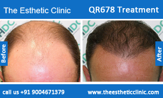 QR678-Treatment-1
