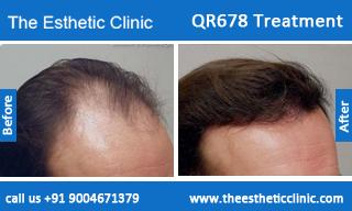 QR678-Treatment-6
