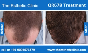 QR678-Treatment-2