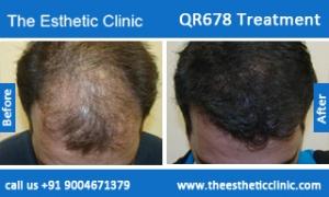 QR678-Treatment-5