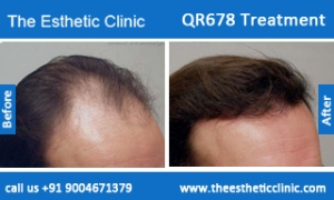 QR678-Treatment-6