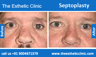 how to clean nose after septoplasty