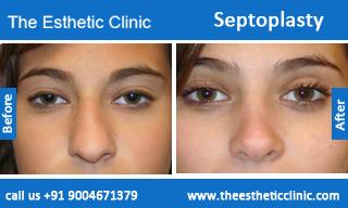 septoplasty-before-after-photos-mumbai-india-4