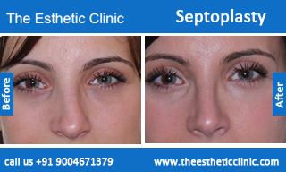 septoplasty-before-after-photos-mumbai-india-6