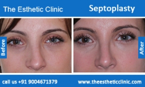 septoplasty-before-after-photos-mumbai-india-6