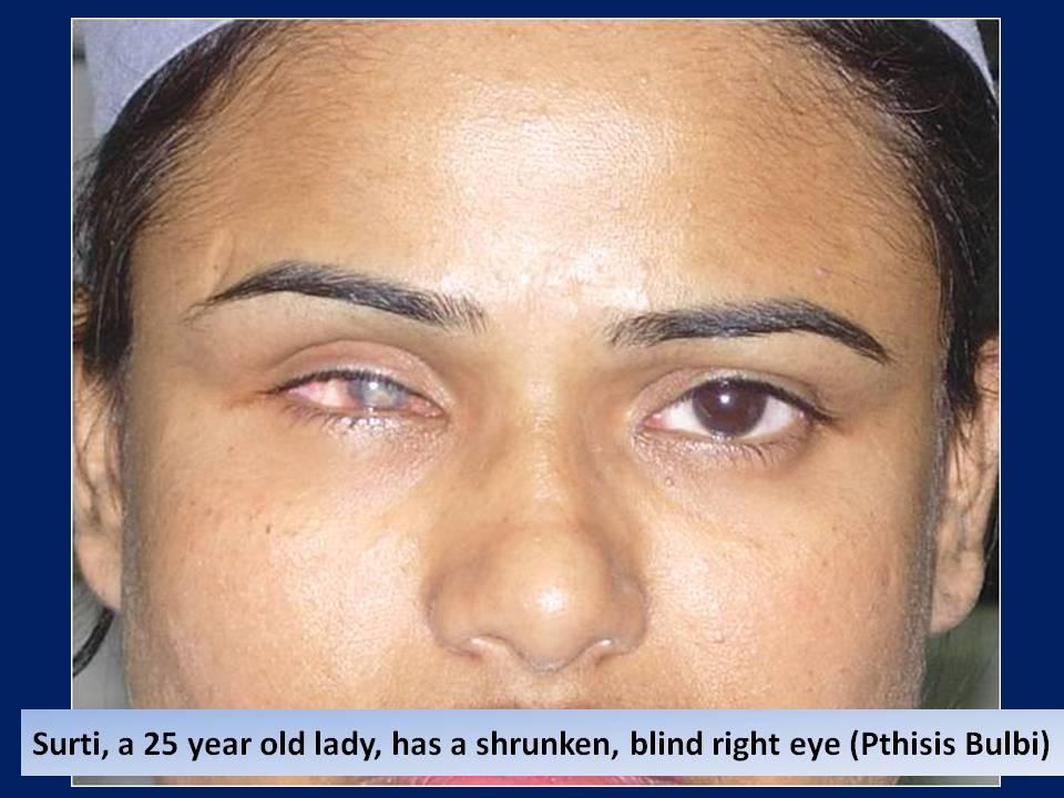 Blind Eye Ocular Prosthesis
