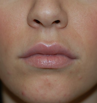 Lip Augmentation Filler Injections