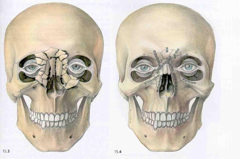 Zygomatic Facial 52