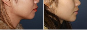 Chin Augmentation treatment Mumbai