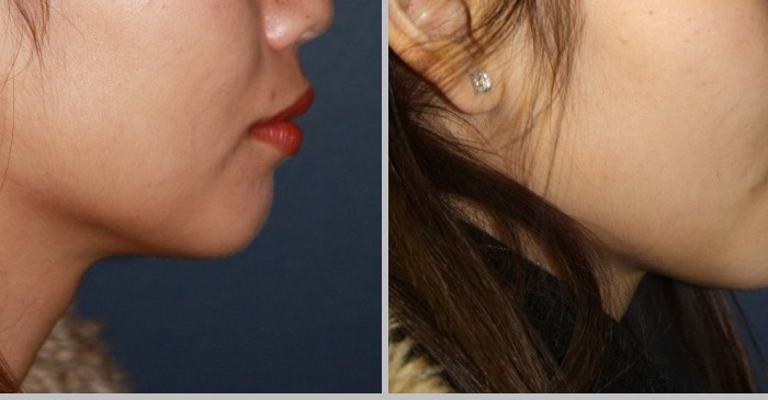 Chin augmentation surgery in mumbai, india