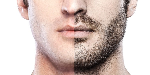 Beard Transplant Trending Cosmetic Procedure for Men  – Dr Debraj Shome