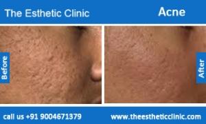 acne-treatment-before-after-photos-mumbai-india-1 (2)
