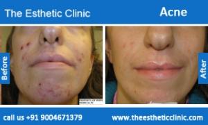 acne-treatment-before-after-photos-mumbai-india-1 (3)