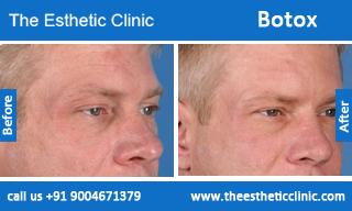 botox-before-after-photos-mumbai-india-3