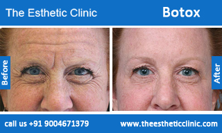 Botox Injections Mumbai Botox Injection Uses