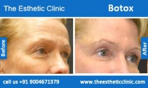 botox-before-after-photos-mumbai-india-2