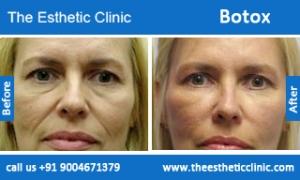 botox-before-after-photos-mumbai-india-5