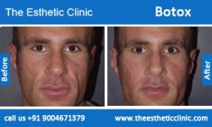 botox-before-after-photos-mumbai-india-6