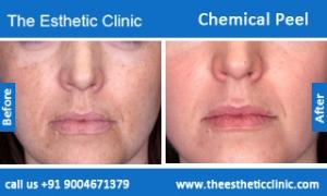 Chemical-Peel-treatment-before-after-photos-mumbai-india-1 (1)