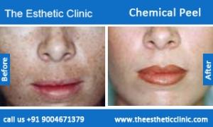 Chemical-Peel-treatment-before-after-photos-mumbai-india-1 (2)