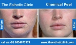 Chemical-Peel-treatment-before-after-photos-mumbai-india-1 (3)