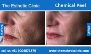 Chemical-Peel-treatment-before-after-photos-mumbai-india-1 (6)