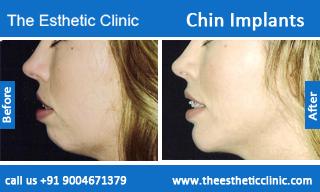 Chin-Implants-before-after-photos-mumbai-india-3