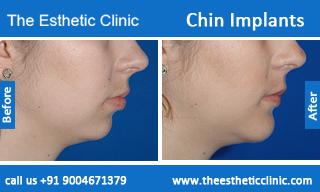 Chin-Implants-before-after-photos-mumbai-india-5