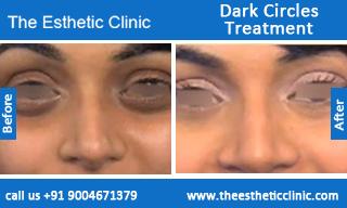 Dark-Circles-treatment-before-after-photos-mumbai-india-1 (4)