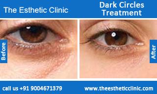 Dark-Circles-treatment-before-after-photos-mumbai-india-1 (6)