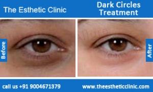 Dark-Circles-treatment-before-after-photos-mumbai-india-1 (3)