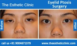 Eyelid-Ptosis-Surgery-before-after-photos-mumbai-india-3