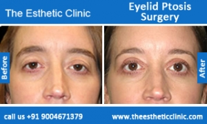 Eyelid-Ptosis-Surgery-before-after-photos-mumbai-india-4