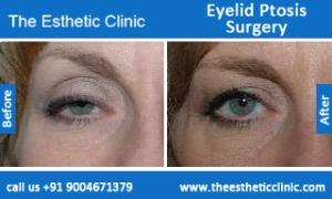 Eyelid-Ptosis-Surgery-before-after-photos-mumbai-india-5