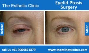 Eyelid-Ptosis-Surgery-before-after-photos-mumbai-india-6