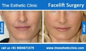 facelift-surgery-before-after-photos-mumbai-india-3