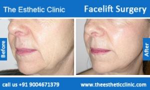 facelift-surgery-before-after-photos-mumbai-india-4
