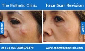 face-scar-revision-before-after-photos-mumbai-india-3