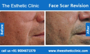 face-scar-revision-before-after-photos-mumbai-india-5