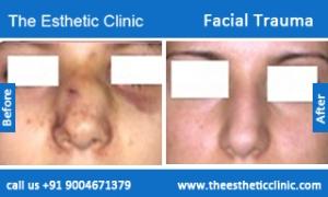Facial-Trauma-2