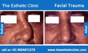 Facial-Trauma-3