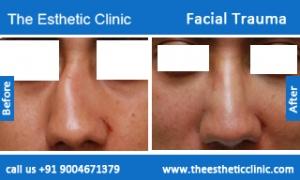 Facial-Trauma-4