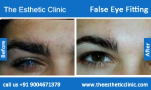 False-Eye-Fitting-1