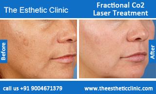 Fractional Co2 Laser Treatment Beautiful Skin Open