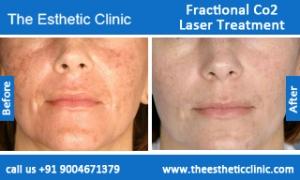 Fractional-Co2-Laser-treatment-before-after-photos-mumbai-india-1 (6)