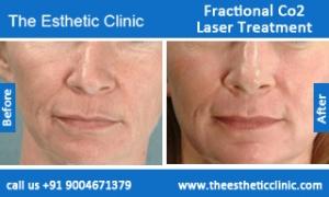 Fractional-Co2-Laser-treatment-before-after-photos-mumbai-india-1 (2)