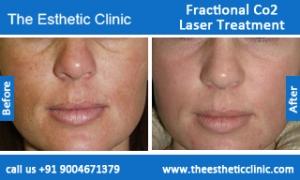 Fractional-Co2-Laser-treatment-before-after-photos-mumbai-india-1 (3)