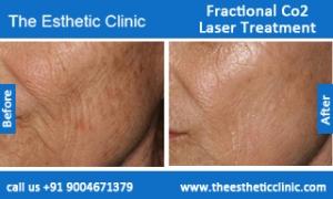 Fractional-Co2-Laser-treatment-before-after-photos-mumbai-india-1 (4)