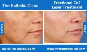 Fractional-Co2-Laser-treatment-before-after-photos-mumbai-india-1 (5)