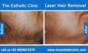 Laser-Hair-Removal-treatment-before-after-photos-mumbai-india-1 (6)